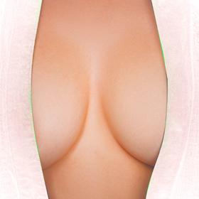 Augmentation mammaire par prothèses à Avignon